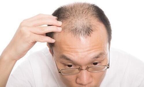 頭皮トラブルを起こさない為の一番の方法は育毛剤の選び方にある