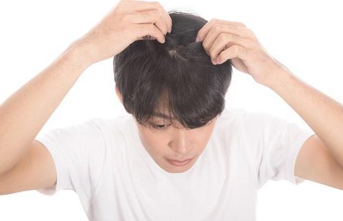 本わさびから見る育毛有効成分