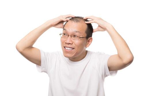 頭皮のかゆみが起きる5つの原因